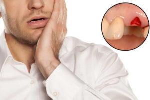 Острая боль и осколок зуба