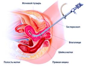 Гистероскопия и молочница