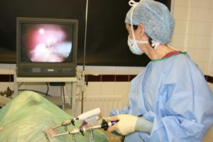 Нужна ли лапароскопия при дисфункции яичников