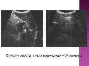 Отек хвоста поджелудочной железы