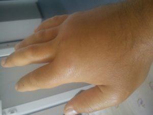 Опухла рука, после удара, попала инфекция