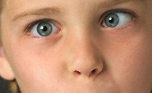 Один глаз почти не видит и начал садиться другой