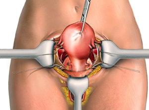 Осложнения после лапаротомии, пангистерэктомии