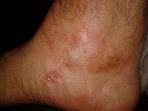 Очаговые высыпания на ногах