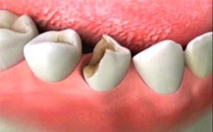 Отломилась стенка зуба