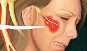 Онемение правой щеки и уха. Неприятные ощущения