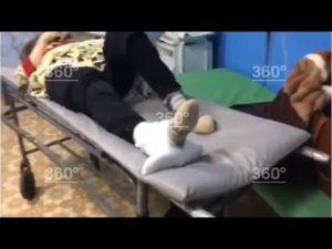 Неадекватное поведение женщины с переломом шейки бедра