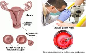 Осложнения биопсии шейки матки