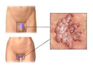 Опухла нижняя половая губа