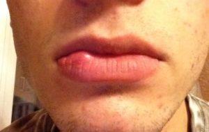 Опухла внутренняя половая губа с внешней стороны