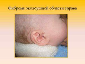 Фиброма у ребенка