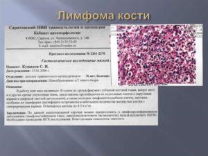 Неходжкинская лимфома маргинальной зоны селезенки. Нужна ли пересадка костного мозга?