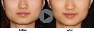 Гипертонус нижней челюсти, бруксизм