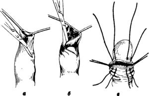 Обрезание, спаечный фимоз