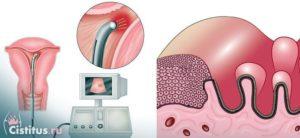 Гипоплазия эндометрия. Поможет ли лечение?