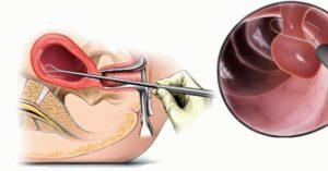 Гиперплазия эндометрия чистка