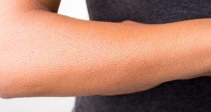 Гусиная кожа после родов