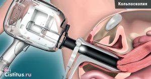 Осмотр зеркалом у гинеколога