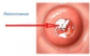 Онкоцитология и лейкоплакия