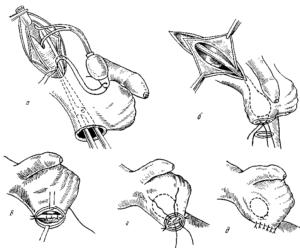 Опущение яичка после операции паховая грыжа