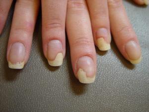 Ногти отходят от ложа
