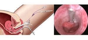 Нужно ли посещать гинеколога, если удалена матка и шейка матки