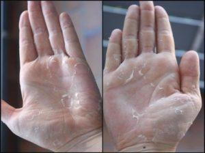 Облазит кожа на руках и ногах