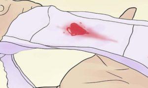 ПА после кровотечения при беременности