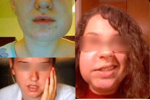 Отек щеки, онемение после лечения 5 внизу справа