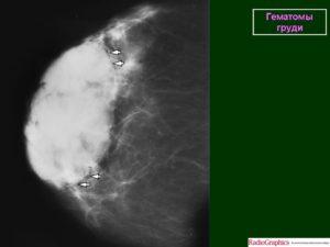 Гематома молочной железы