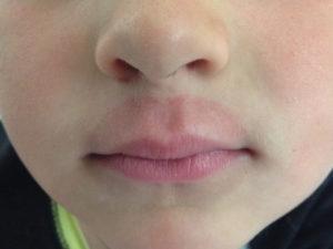 Облезает и трескается верхняя губа у ребёнка