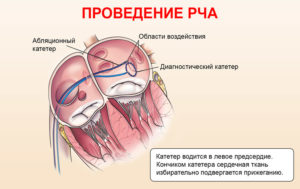 Одышка после рча (абляции) сердца
