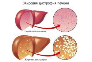 Острый панкреатит, жировая инфильтрация печени
