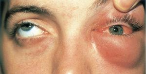 От удара лбом опух и покраснел внутри глаз