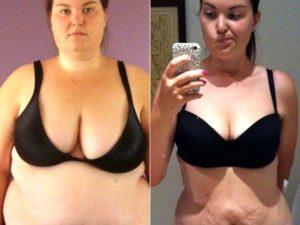 Обвисшая грудь в 16 лет, и возможно ли её поднять