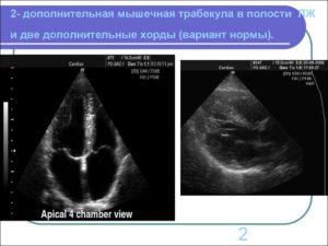 Ооо 1.6 мм и дополнительная хорда в полости левого желудочка