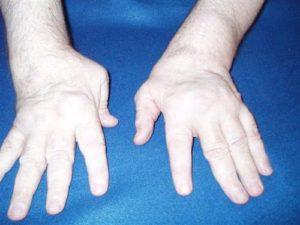 Передаётся ли артрит по наследству?