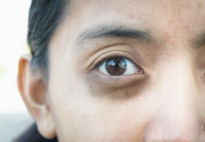 Глаз тормозит