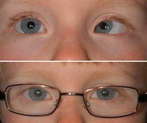 Глаз косит в сторону, можно это как то исправить?