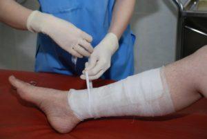 Немеет нога после операции