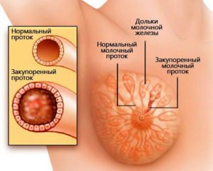 Ореола уплотняется при кормлении