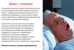 Остановка сердца во сне