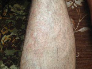 Неизвестное пятно на ноге?