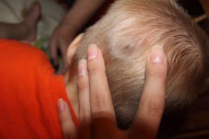 Небольшая шишечка на голове у ребенка