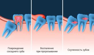 Озноб и ноющая боль после удаления зуба мудрости