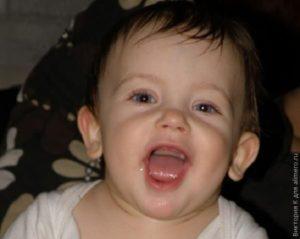 Нет зубов в 11 месяцев