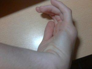 Опухоль на костяшке после удара