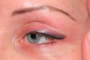 Острая боль в глазу после татуажа век