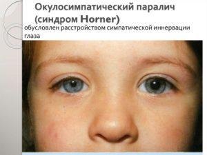 ПАРЕЗ ГЛАЗА (синдром Дуэйна)