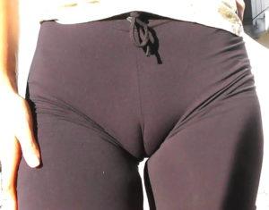 Образование между ногой и большими половыми губами